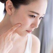 Treat-Hormonal-Acne